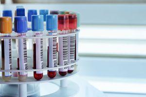 Tuberculose : des tests de diagnostics beaucoup plus rapides pour des milliers de patients