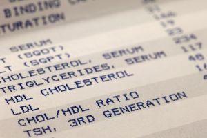 """Le bon cholestérol pourrait devenir """"mauvais"""""""