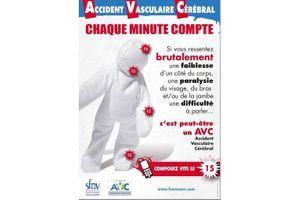 Accident vasculaire cérébral : chaque minute compte !