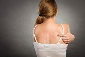 Allergies : lavez les vêtements neufs pour protéger votre peau