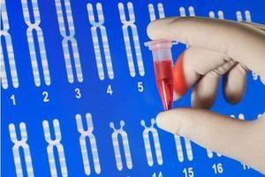 Alzheimer : les Français se feraient diagnostiquer en amont si un test existait