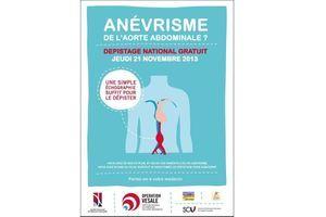 Anévrisme de l'aorte abdominale : un fléau méconnu