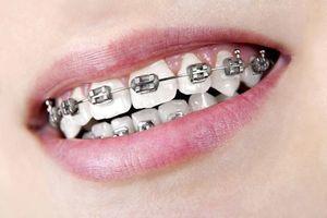 """Attention aux tutos vidéo pour faire des appareils dentaires """"maison"""" !"""