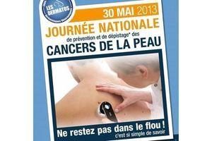 Cancer de la peau : les dermatologues consultent gratuitement le 30 mai prochain