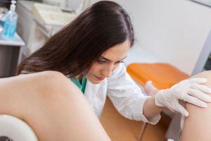Cancer du col de l'utérus : faut-il continuer les frottis après 65 ans ?