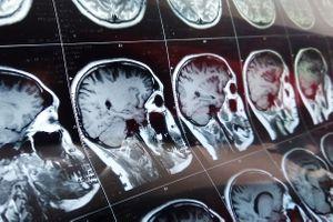 """Ils découvrent un """"oeuf de caille"""" dans le cerveau d'une patiente"""