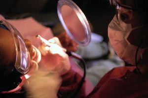 Soins dentaires : il ne faut pas dépasser 8 plombages au mercure