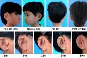 Des oreilles cultivées en laboratoire greffées sur des enfants