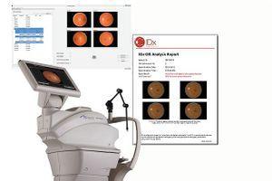 Feu vert aux USA pour le premier dispositif qui détecte la rétinopathie diabétique utilisant l'intelligence artificielle
