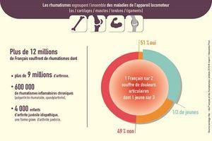Douleurs articulaires: un Français sur deux en souffre