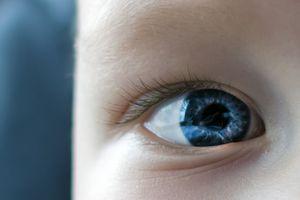 Elle sauve la vie de sa fille en notant le reflet blanc sur son oeil dans une photo