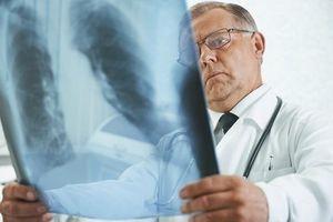Être hospitalisé pour une pneumonie augmente le risque cardiovasculaire