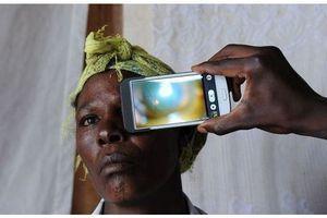 Eye-Phone propose un diagnostic oculaire dans les pays pauvres