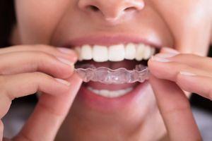 Gouttières dentaires : attention aux ventes non professionnelles