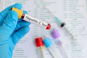 Hépatites virales : les dépistages légèrement en hausse en 2016