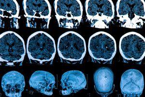 Huntington : un médicament pourrait ralentir la maladie