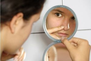 L'acné trop souvent victime de préjugés ?