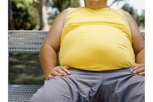 L'obésité peut être considérée comme un handicap au travail, selon la justice européenne