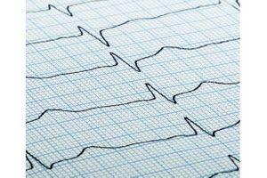 La fibrillation atriale, floue pour 87% des Français