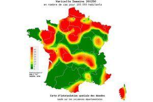 La varicelle en forte progression en France