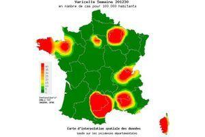 La varicelle en passe de quitter la France