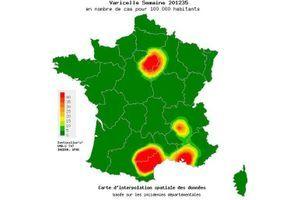 La varicelle ne sévit plus en France métropolitaine