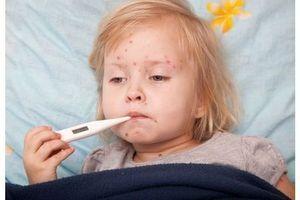 La varicelle très active en France métropolitaine