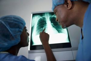 Le mésothéliome, nouvelle maladie à déclaration obligatoire