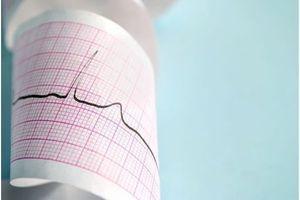 Maladies cardiovasculaires en Europe : des progrès malgré de larges disparités