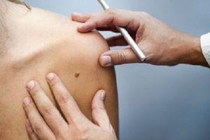 Mélanomes : résultats encourageants pour des vaccins sur mesure