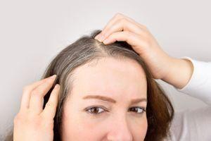 On sait désormais pourquoi les cheveux peuvent blanchir sous l'effet du stress
