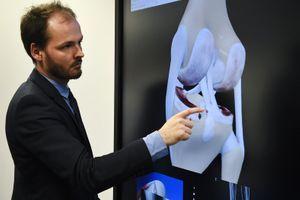 Prothèse de genou connecté : le CHRU de Brest lance un projet innovant