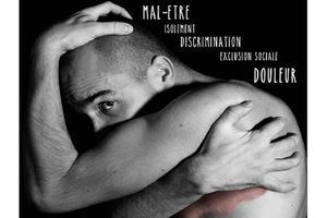 Psoriasis : 64 % des patients victimes de discrimination