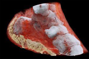 Première radiographie couleur 3D d'un humain