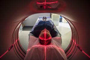 """Santé : encore plus de 32 jours d'attente pour une IRM """"urgente"""""""