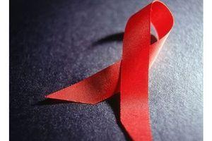 Sida : 1 500 nouveaux cas en 2012, 88 000 depuis le début de l'épidémie