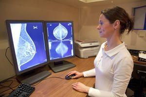 """Un logiciel pour """"calculer"""" le risque de cancer du sein"""