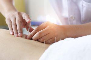 Victime d'un poumon perforé après une séance d'acupuncture