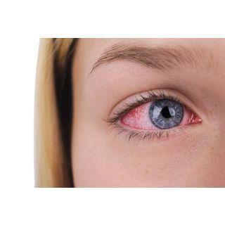 Herpès des yeux