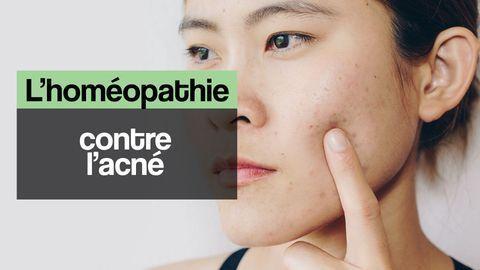 acné homéopathie