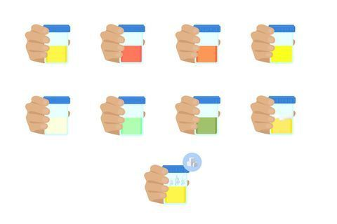 Les différentes couleurs d'urine et leur signification