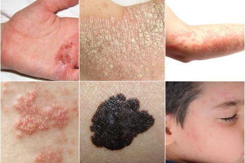 Comment distinguer les différentes maladies de peau ?