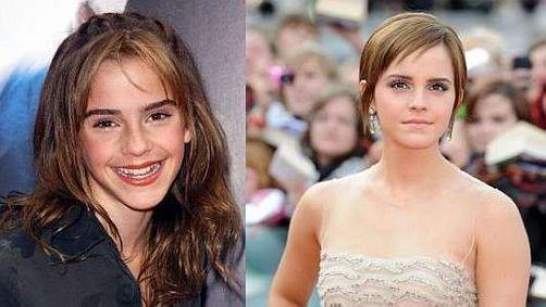Stars avant / après : comment elles sont devenues sexy