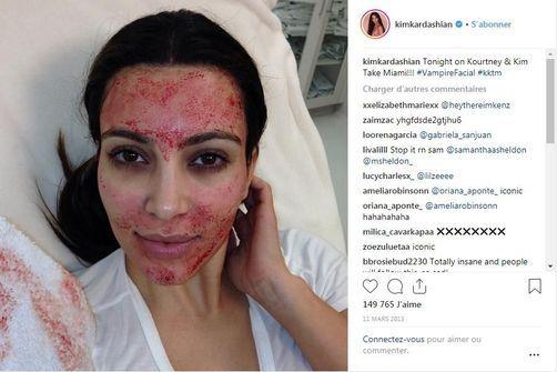 """Le """"vampire facial lift"""" rendu célèbre par Kim Kardashian, aurait causé une infection au Nouveau Mexique"""