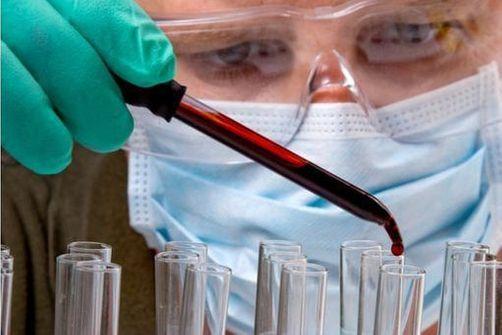 un test sanguin pour dépister l'autisme