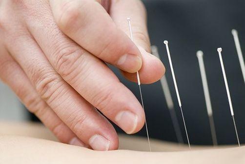 L'acupuncture, efficace contre l'angine de poitrine