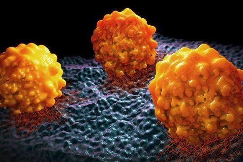Cancer : les métastases surviendraient à un stade extrêmement précoce