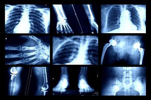 Implant files : les incroyables lacunes du contrôle des dispositifs médicaux