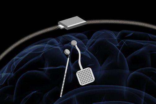 neurostimulateur wand
