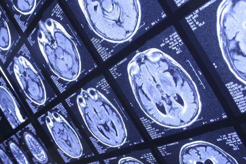 Une recherche réalisée par des médecins de l'université du Kentucky et parue dans la revue Jama Neurology décrit une forme complexe et encore mal connue de démence.